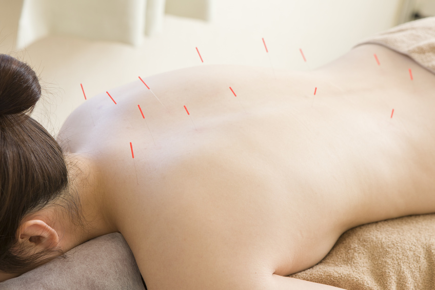 Women a lot of acupuncture are stuck in the back